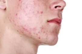 Acne Solutions and Getting Rid of Acne