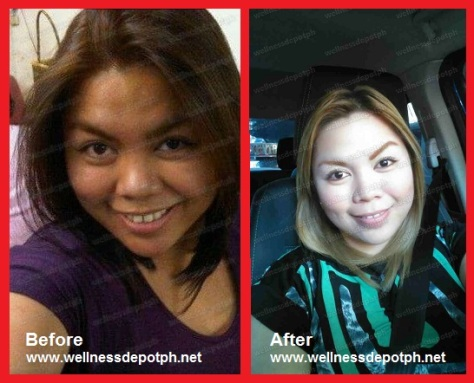 glutathione before and after