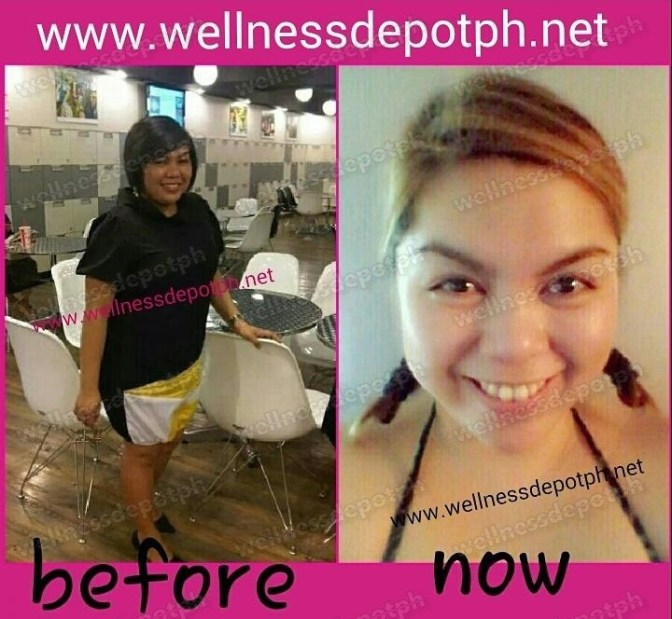 Glutathione Testimonial from Glutax User:  Amazing Before and After Transformation by Miss Pineda