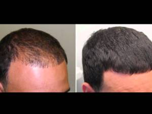 hair growth treatment minoxidil