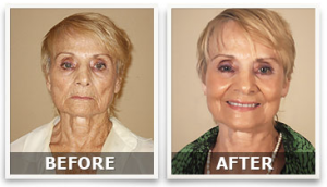 Lifecell Anti Aging Cream Before and After