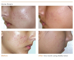 m2-Before_and_After_AcneScars4