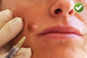 photo_of_doctor_injecting_womans_acne_with_corticosteroid