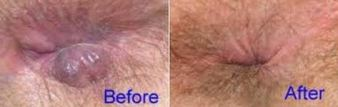 venapro before and after