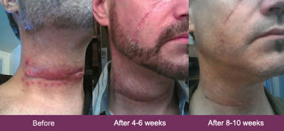 mederma-before-and-after-neck-scar-from-accident