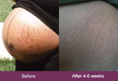 mederma-before-and-after-stretch-marks-pregnancy