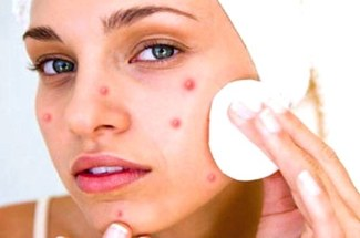 pimples2