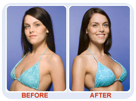 84 best Breast Enlargement: Options for Breast Implants images on Before and after breast enhancement pills photos