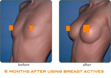 breast-actives-before-after