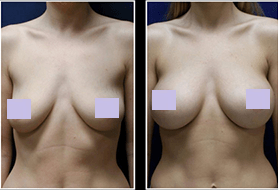 Breast Actives Philippines Beauty Skin Whitening Health