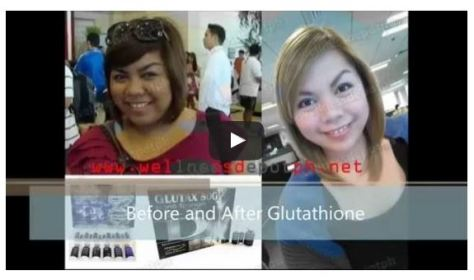 best glutathione iv review.JPG