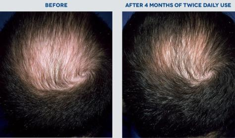 rogaine hair growth treatment review