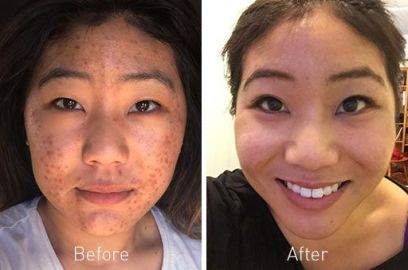 Proactiv Before and After